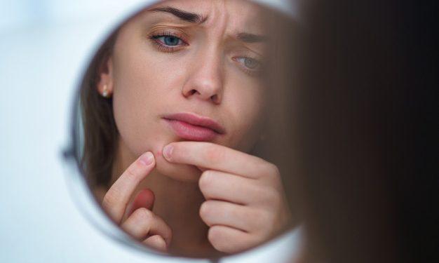 acne-hormonal-tratamento-e-remedios-naturais